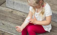 Kind mit Neurodermitis am Arm trägt Creme auf.