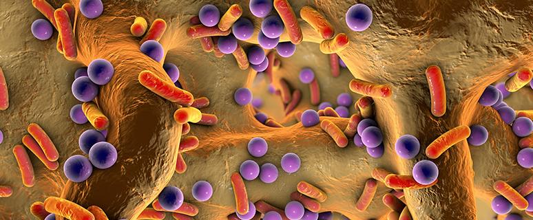Hals, Rachen, Bakterien